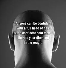 Baldness1
